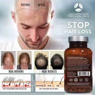 DHT Blocker - Viên uống chống rụng tóc Advanced Trichology DHT Blocker