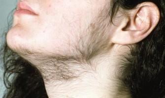 Ngưng Sử Dụng Thuốc Minoxidil 5% Râu và Tóc Có Bị Rụng Không?